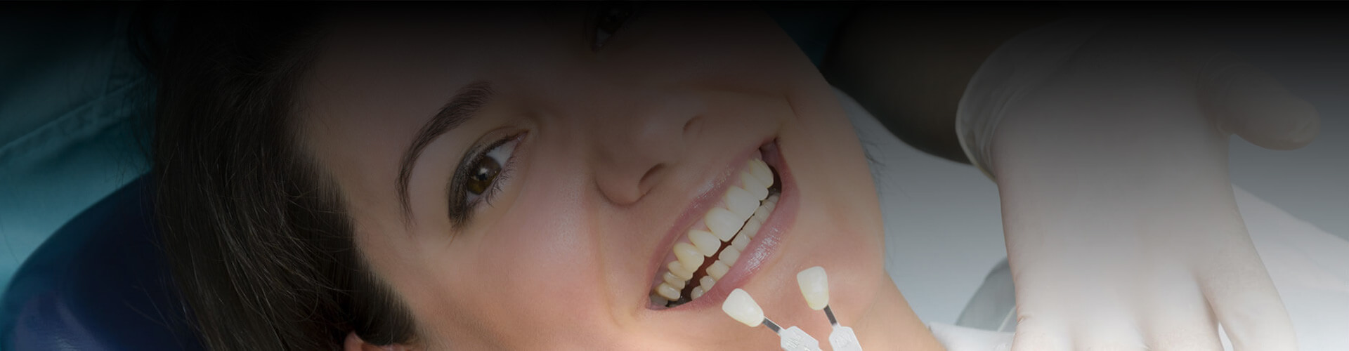 Cropped view of patient smiling to select tooth colored fillings